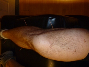 Acupuncture treatment for ailing knee